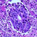 pancreaticcarcinomahe